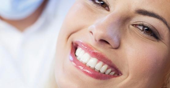 Profesyonel Diş Beyazlatma
