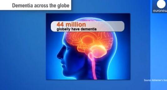 Alzheimer  Tedavisi 2019 Alzheimer  Yeni gelişmeleri